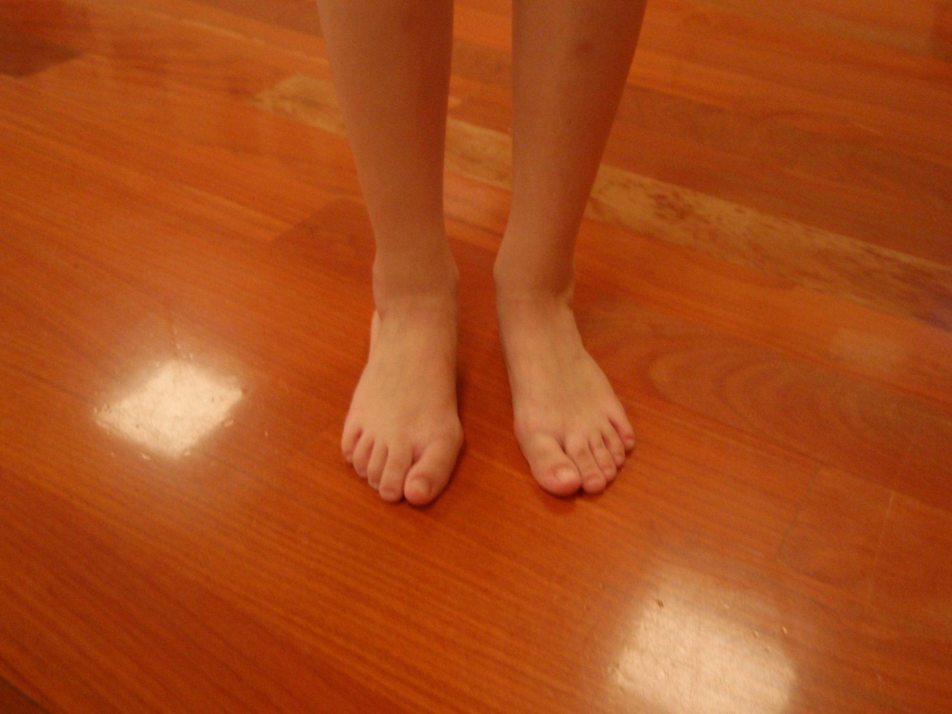 Centro de Danza Sandra Santa Cruz. Alumna con pies valgos y con hallux valgus o juanetes.
